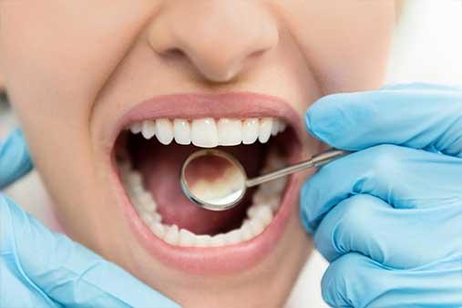 precvent-dental-decay