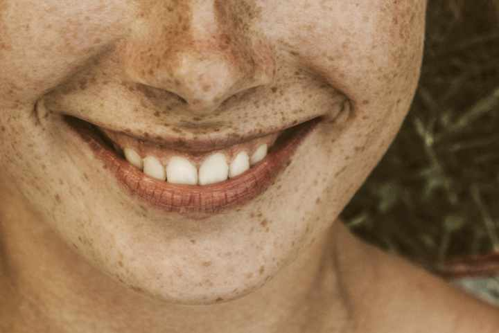 Girl smiling with pearly white teeth.